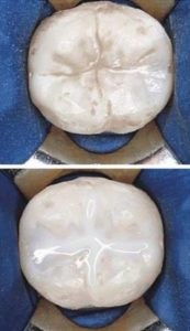 Dental Sealants Before After Photos in Chicago