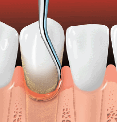 Root planing smoothes the tooth root and helps the gums reattach to the tooth.