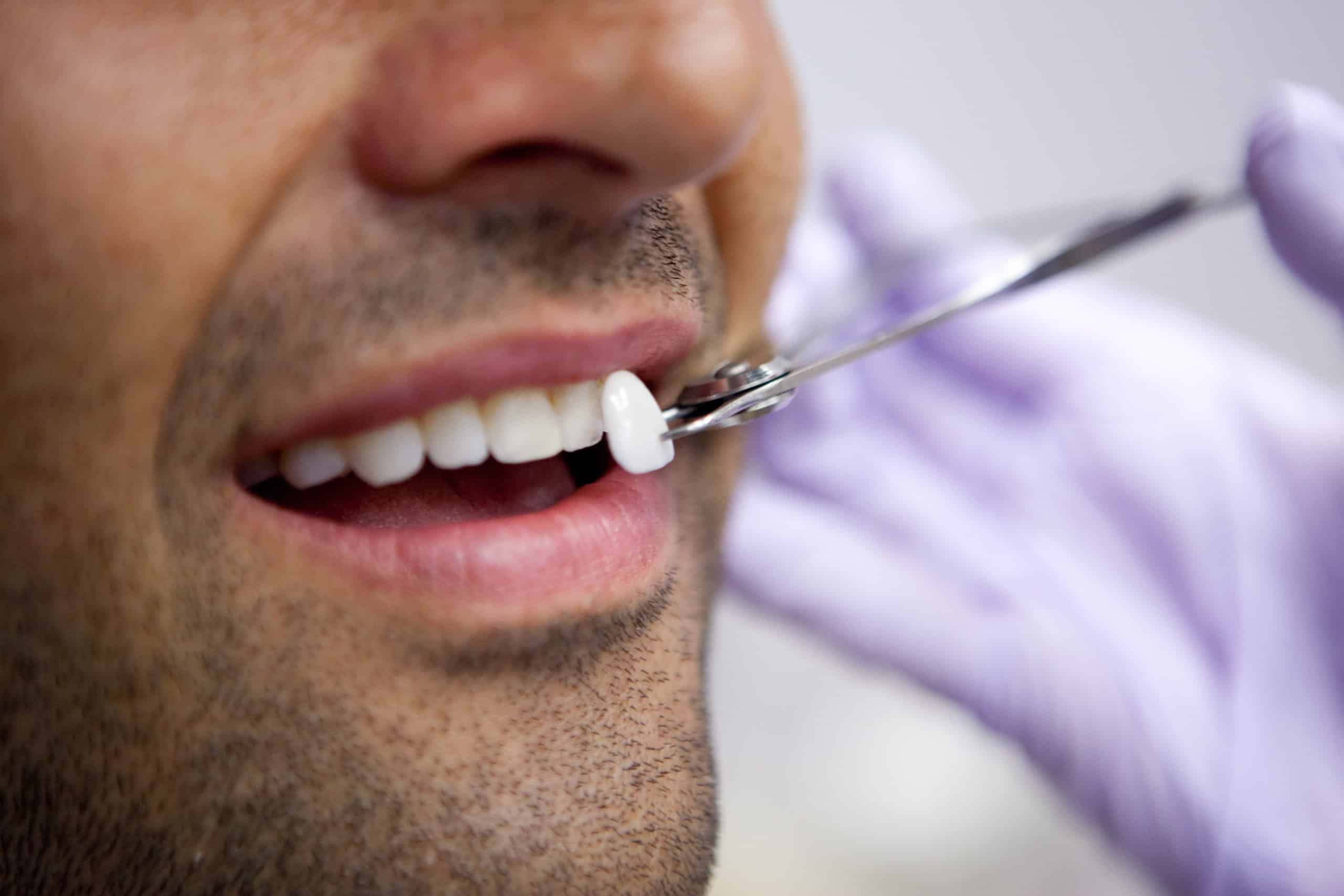 Dental veneers in Chicago, Evanston, & Skokie
