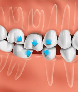 If the tooth is not replaced, other teeth can drift out of position and change the bite